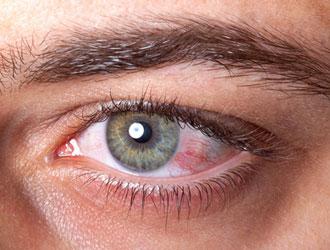 بیماریهای شایع چشم