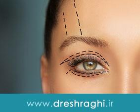 نکات مهم در جراحی زیبایی پلک