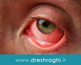 نکاتى در رابطه با تخليه چشم و نگهدارى پروتز