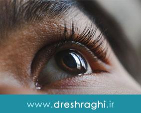 بیماری تیروئید چشمی چیست و چه علائمی دارد؟