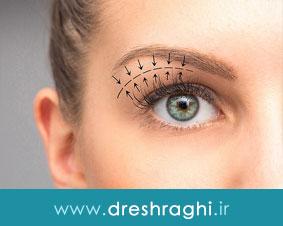 بلفاروپلاستی روشی برای درمان مشکلات عملکردی و اختلال در زیبایی پلک