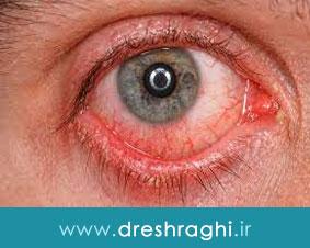 تومورهای چشمی