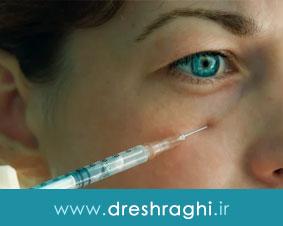 کاربردها، عوارض، و ماندگاری تزریق ژل زیر چشم