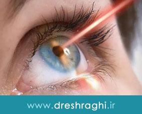 لیزریک چشم