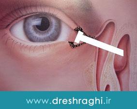 درمان اشک ریزش چشم با جراحی مجرای اشکی به روش اندوسکوپی