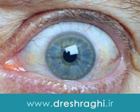 تیرویید چشمی چیست و چگونه درمان میشود؟