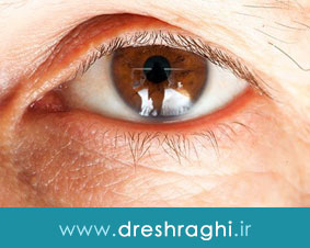 جراحیهای مناسب برای بهبود ضعیفی چشم