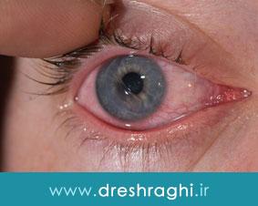 انواع آسیب های قرنیه چشم