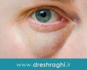 درمان پف زیر چشم چگونه است؟