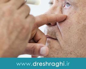 آب مروارید چشم چگونه درمان میشود؟