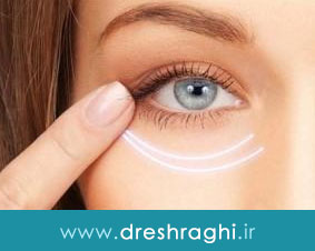 جراحی رفع گودی کاسه چشم