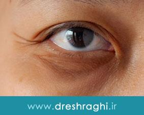 آیا پی آر پی روش موثری برای جوانسازی صورت و اطراف چشم محسوب میشود؟