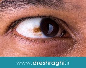 تومور بدخیم پلک چشم چیست و علل، علائم و درمان آن