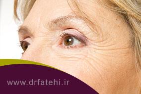 بهترین درمان گودی زیر چشم