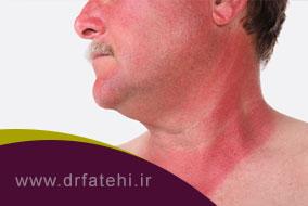 آفتاب سوختگی و درمان آن