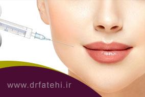 فرم دهی طبیعی به لبها با تزریق ژل هیالورونیک اسید