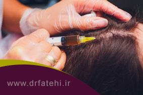 مزوتراپی مو روشی برای بهبود و تقویت موها
