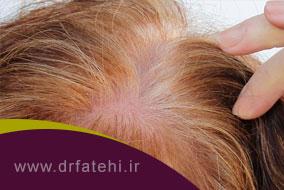 پی آر پی چیست و چه تاثیری در ریزش مو دارد؟