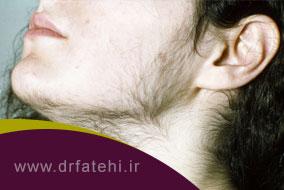 علت رویش موهای مردانه در زنان (هیرسوتیسم)