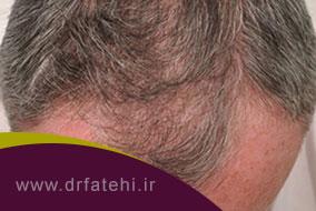 اقدامات لازم بعد از کاشت مو به روش FIT