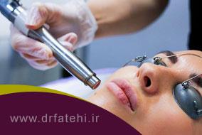 کاربرد لیزر اربیوم در کلینیک های پوست