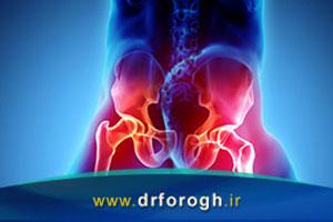 علل درد باسن در پشت لگن