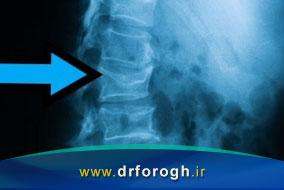 علائم شکستگی ستون فقرات ناشی از پوکی استخوان