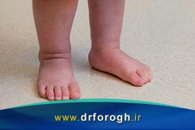 علل کج راه رفتن در کودکان چیست؟