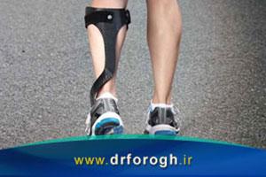 انواع بریس Brace یا ارتز  Orthosis