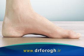 علت و درمان قوس و گودی زیاد کف پا