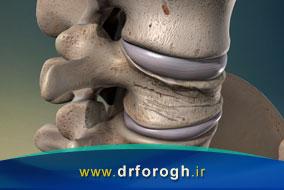 روشهای درمان شکستگی مهره