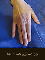 تکنیک ها ی جوانسازی دست ها