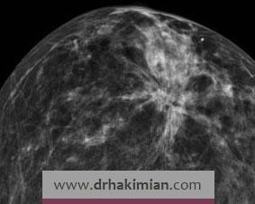 آیا آدنوزیس پیش زمینه سرطان پستان است؟