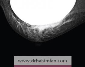 آیا می توان ماموگرافی را برای پستان دارای پروتز انجام داد؟