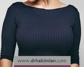 جراحی های زیبایی پستان شامل چه مواردی می شود؟
