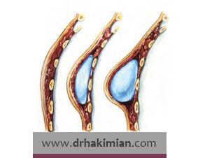عمل جراحی ترمیمی یا بازسازی پستان چیست؟