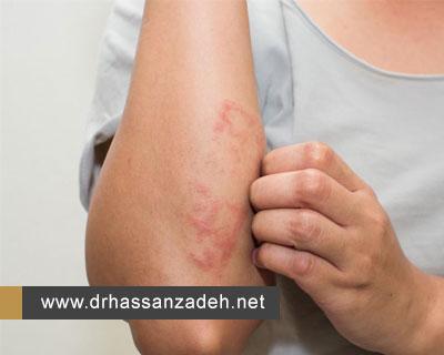 انواع اگزما و روشهای درمان این بیماری