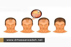 انواع روشهای کاشت مو