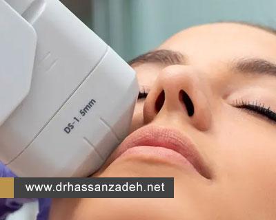 درمان  افتادگی صورت با هایفوتراپی