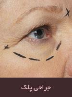 درمان و رفع افتادگی پلک با جراحی
