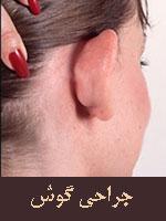 عمل جراحی گوش یا اتوپلاستی چیست و چگونه انجام می گیرد ؟