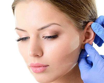 جراحى زيبايى گوش - اتوپلاستى