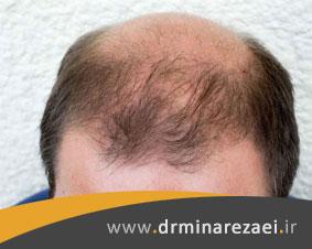 ریزش موی آندروژنیک، شایعترین علت ریزش مو در زنان و مردان