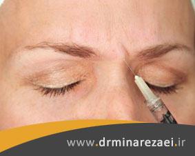 جوانسازی پوست با تزریق بوتاکس خط اخم