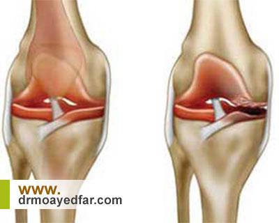 علائم  آرتروز و ساییدگی مفصل زانو چیست؟