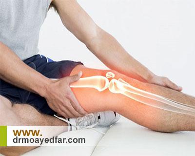 ورزشهای مناسب کاهش درد در آرتروز زانو