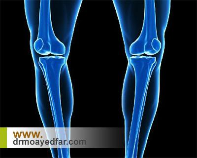 درمان پای پرانتزی