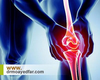 علائم استئوآرتریت یا آرتروز زانو را بشناسید