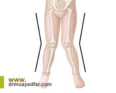 پای ضربدری چگونه درمان میشود؟