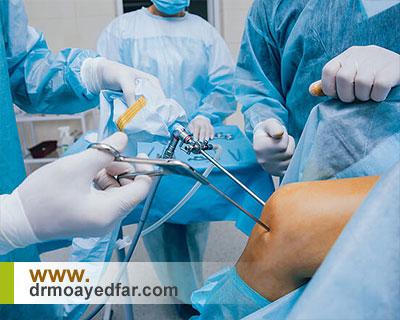 آنچه بهتر است درباره جراح زانو بدانیم